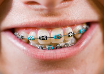 Coloured Braces, Langley Dentist