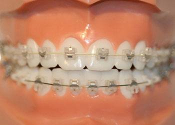 In-Ovation Braces, Langley Dentist