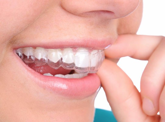Invisalign Clear Braces, Langley Dentist