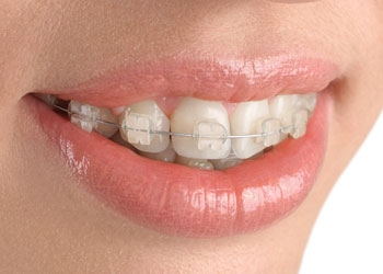 Translucent Cosmetic Braces, Langley Dentist